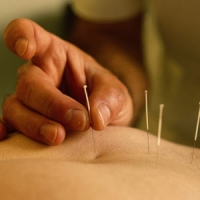 Needles for acupuncture and for auricolotherapy